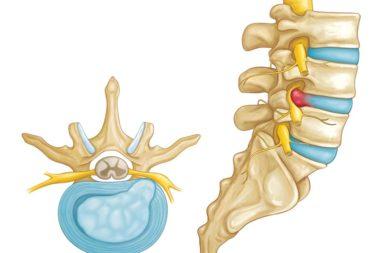 تمارين تساعد في علاج الانزلاق الغضروفي الذي يصيب غالبًا الأفراد في بداية سن البلوغ أو منتصف عمرهم - تمارين علاج انفتاق القرص أو انتباجه