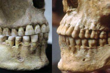 توضح الصورة الفرق بين جمجمة أنثى رومانية من البشر الصيادين-الجامعين (على اليسار) وبين جمجمة رجل يوناني بالغ عمرها 2500 عام (على اليمين)، إذ تفتقر جمجمة الأنثى لبروز الأسنان العلوية.