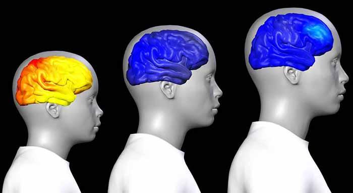 كيف يتغير الدماغ عند البلوغ وخلال فترة المراهقة ؟