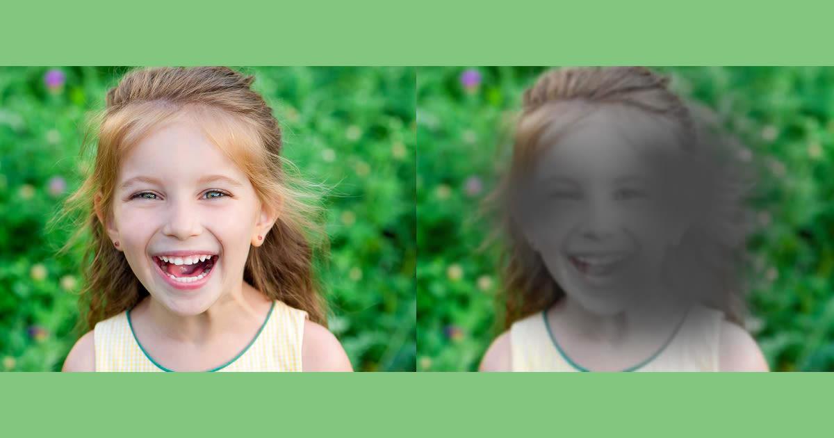تعرف على تنكس شبكية العين أشيع أسباب العمى في العالم - أشيع الأسباب المؤدية إلى فقدان الرؤية - سبب ضبابية الرؤية واضطراب في رؤية الألوان - التنكس البقعي