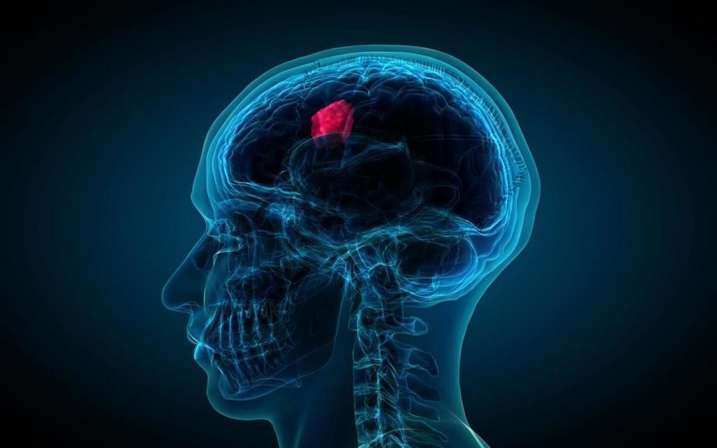 الورم الأرومي الدبقي: الأسباب والأعراض والتشخيص والعلاج