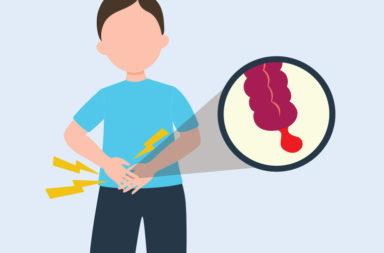 التهاب الزائدة الدودية - انسداد يصيب الزائدة الدودية - تراكم بقايا الفضلات أو المخاط أو الطفيليات أو أي أجسام غريبة - تكاثر البكتيريا
