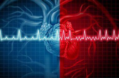 أسباب الرجفان الأذيني أعراض الرجفان الأذيني التشخيص الوقاية العلاج نظم القلب دقات القلب اضطراب الخفقان القلبي تدفق الدم النظم انخفاض الضغط