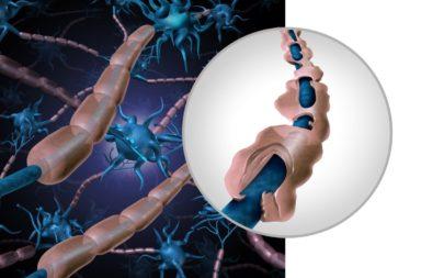 مستقبل علاج مرض التصلب العصبي المتعدد (في الأفق) - ثورة في الأدوية التي تغير مسار مرض التصلب العصبي المتعدد - أكبر قصص النجاح في الطب