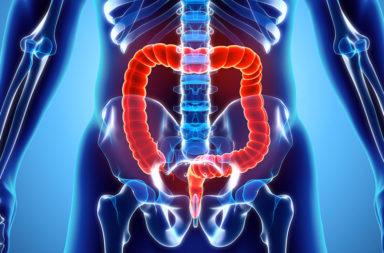 ما الأطعمة التي يجب تناولها للوقاية من سرطان القولون - أغذية مفيدة تساعد في الوقاية من سرطان القولون - أطعمة تقي من الإصابة بالسرطان