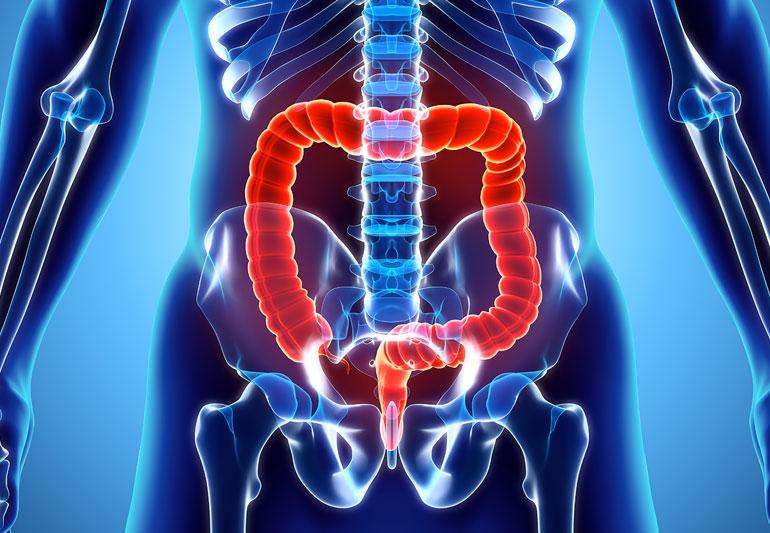 ما الأطعمة التي يجب تناولها للوقاية من سرطان القولون ؟