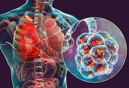 الالتهاب الرئوي الجرثومي: الأسباب والأعراض والتشخيص والعلاج