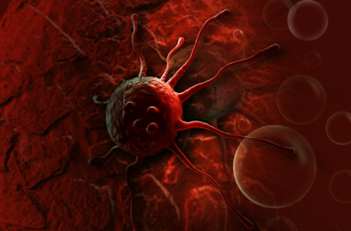 كيف تطورت النظريات التي تفسر ظهور السرطان عبر التاريخ - تفسير أسباب السرطان - أشهر النظريات العلمية التي تفسر سبب الإصابة بالسرطان