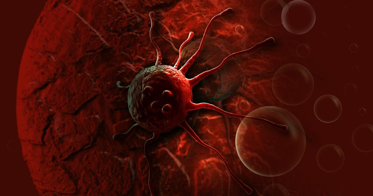 كيف تطورت النظريات التي تفسر ظهور السرطان عبر التاريخ؟