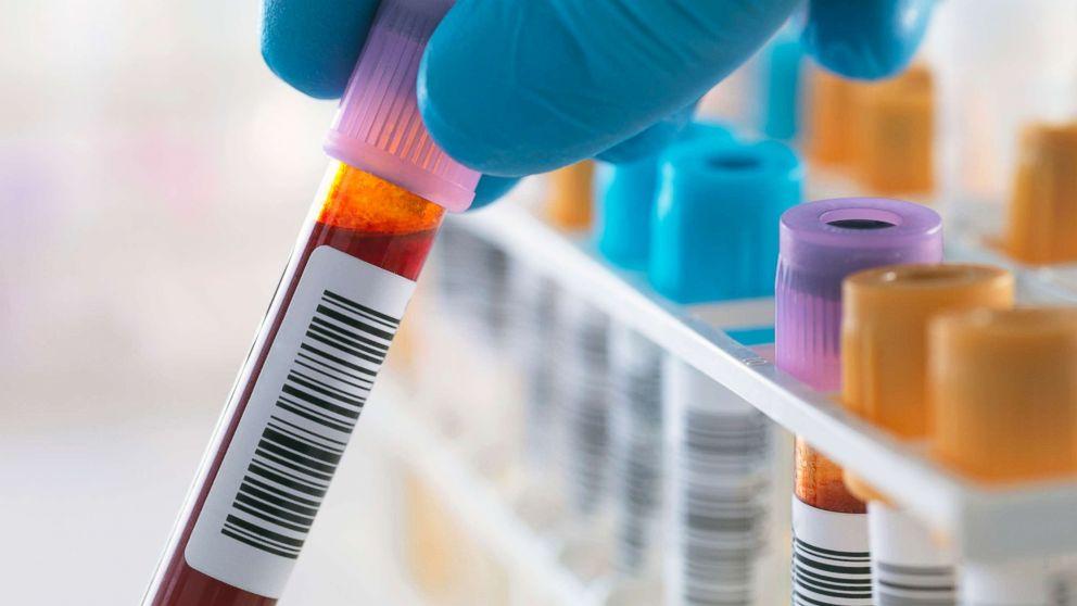 شفاء أول مريض من فيروس نقص المناعة دون اللجوء لزرع نقي العظم - فيروس العوز المناعي البشري - زراعة نقي العظم - علاج السرطان