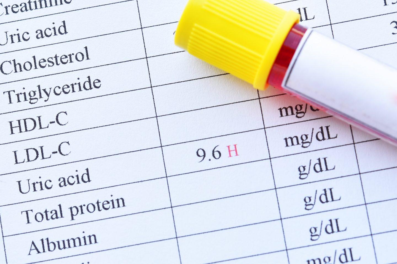 ارتفاع حمض البول: الأسباب والعلاج