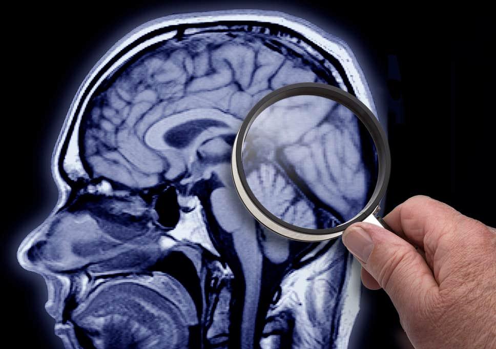 هل يملك المريض السايكوباتي الناجح ميزات دماغية؟