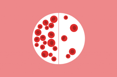 أعراض فقر الدم أعراض نقص الحديد فقر الدم الانيميا خلايا الدم الحمراء الهيموغلوبين الدورة الشهرية خضاب الدم الطبيعي انخفاض الخضاب