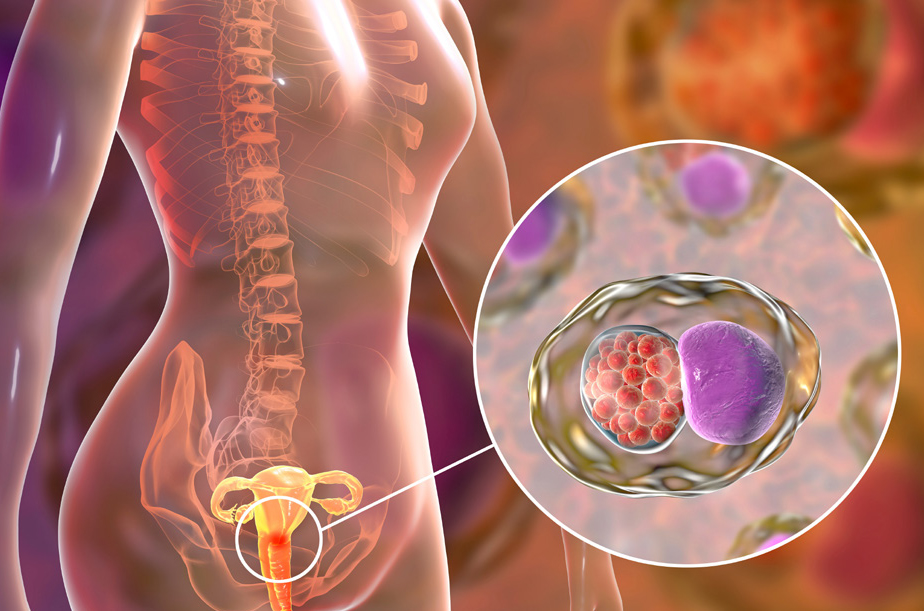 توصيات للوقاية من سرطان عنق الرحم والكشف المبكر عنه - اختبار مسح سرطان عنق الرحم - اختبار فيروس الورم الحليمي البشري - منع تطور السرطان