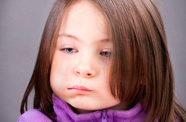 النكاف: الأسباب والأعراض والتشخيص والعلاج