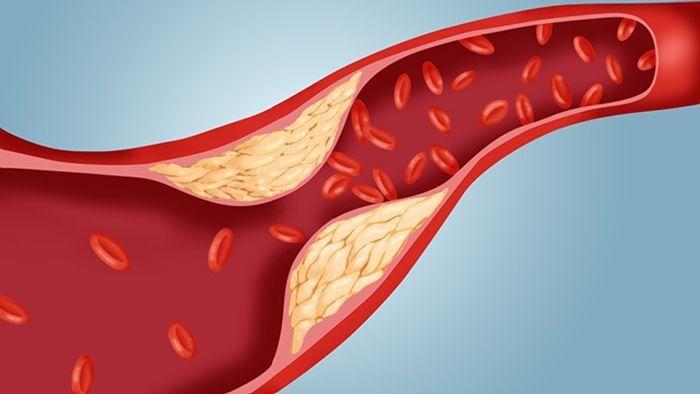 كيف يتحول الكوليسترول المفيد إلى كوليسترول ضار