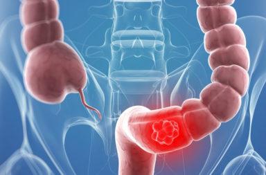 هل توجد هناك علاقة بين استخدام المضادات الحيوية وزيادة حالات سرطان القولون والمستقيم ؟ ارتباط المضادات الحيوية بخطر الإصابة بسرطان المستقيم