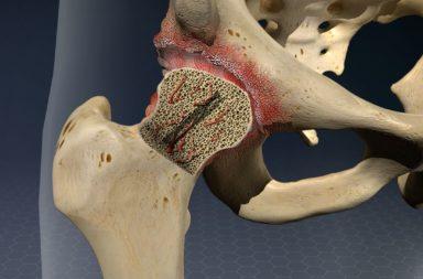 داء يصيب العظام يؤدي إلى آلام مفصلية خاصةً في الورك - أذية تبطئ أو توقف وصول الدم للعظام مما يؤدي للإصابة بالنخر اللاوعائي - أعراض النخر اللاوعائي