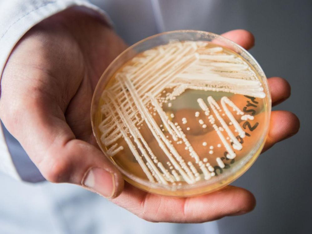 انتشار فطريات قاتلة في جميع أنحاء العالم يقلق العلماء