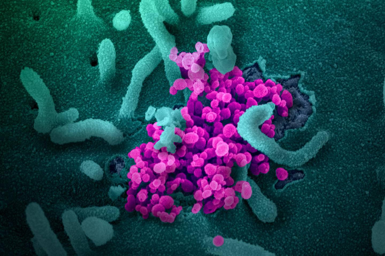 الأجسام المضادة التي تحمينا من فيروس كورونا لا تستمر إلا بضعة شهور
