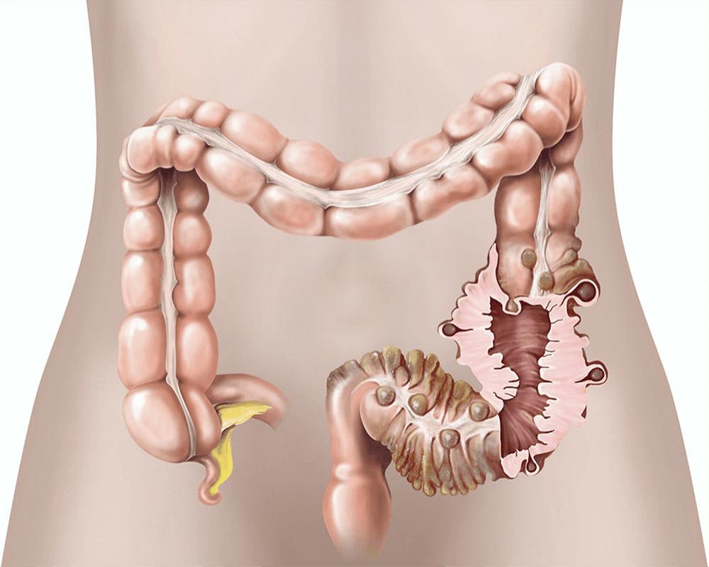 داء الرتج: الأسباب والأعراض والتشخيص والعلاج