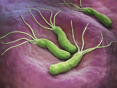 ما هي بكتيريا الهليكوباكتر البوابية ؟