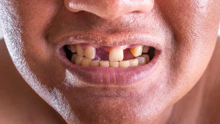 الأسباب الجينية لدى الأشخاص الذين يمتلكون عددًا أكبر من الأسنان لتوظيفها في عملية تجدد الأسنان لدى البالغين - وظيفة بروتين تخليق العظام