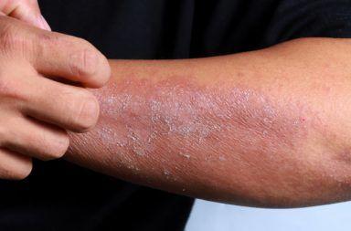 التهاب الجلد التماسي الأسباب والأعراض والتشخيص والعلاج علاج التهاب الجلد التماسي ظهور الطفح الجلدي الحساسية بشرة جافة متشققة ومتقشرة