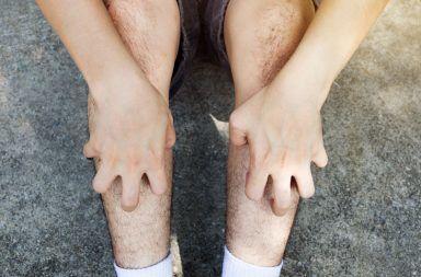 التهاب الجلد الهربسي (حلئي) الشكل الأسباب والأعراض والتشخيص والعلاج Dermatitis herpetiformis هو طفح جلدي ينتج بسبب الحساسية تجاه الغلوتين