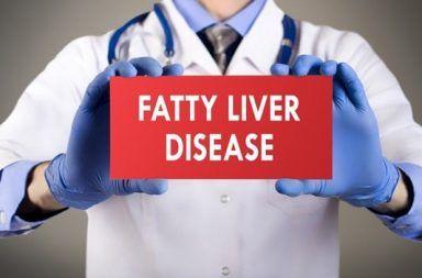 أعراض الكبد الدهني الحاد خلال الحمل علاج الكبد الدهني الحاد خلال الحمل الأسباب والأعراض والتشخيص والعلاج الدهون في خلايا الكبد
