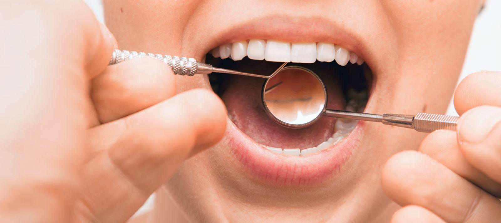 هل لأمراض اللثة علاقة بالالتهابات وبأمراض القلب والسرطان - أمراض اللثة - خلايا الدم المتعادلة - البكتيريا التي تصيب الأسنان