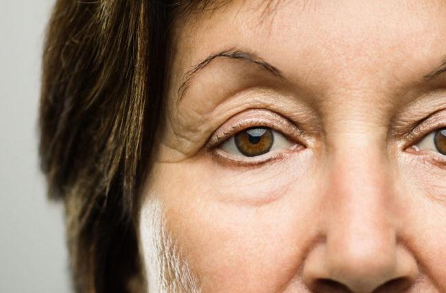 ما أسباب تدلي جفن العين؟