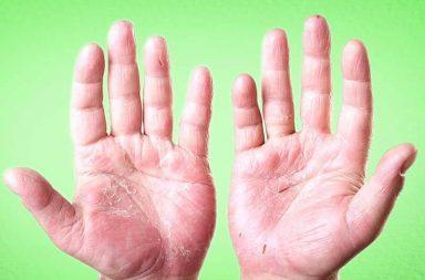 ما أسباب تقشر جلد اليدين؟ وما علاجه؟ - تقشر جلد اليدين - يحمر جلد اليدين بعد عدة ساعات من التعرض المفرط لأشعة الشمس - كريمات الترطيب والكمادات الباردة