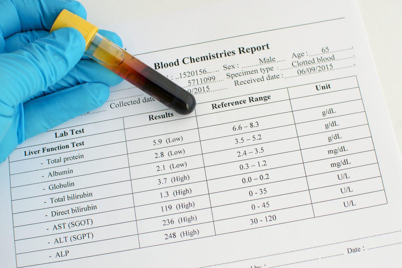 ارتفاع خمائر الكبد الأسباب والعلاج أنا أصدق العلم