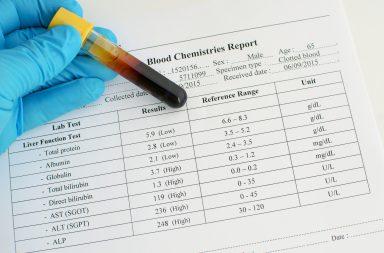ارتفاع خمائر الكبد: الأسباب والعلاج - خلايا الكبد التالفة أو الملتهبة - خمائر يفرزها الكبد وتظهر في تحليل الدم - إدمان الكحول أو المخدرات