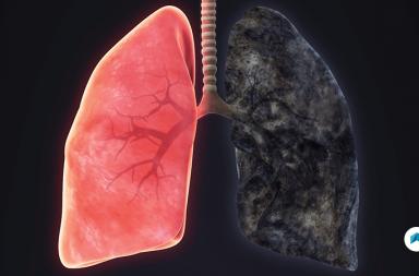 انتفاخ الرئة: الأسباب والأعراض والتشخيص والعلاج - مرض يصيب الرئتين - التهاب القصبات المزمن chronic bronchitis - الحويصلات الرئوية