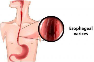 الدوالي المريئية: الأسباب والأعراض والتشخيص والعلاج دوالي المريء أوردة متورمة في بطانة المريء التحكم في النزيف الأذية الكبدية