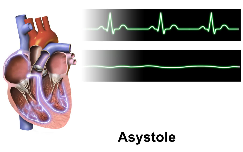 حالة توقف الانقباض القلبي