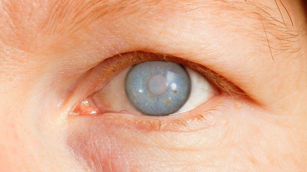 ما هو الزرق؟ دراسة تقترح امكانية أن يكون مرض مناعة ذاتية
