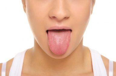 التهاب اللسان: الأسباب والأعراض والتشخيص والعلاج أعراض علاج التهاب اللسان تغير في لون اللسان إلى الأحمر اللامع داء المبيضات