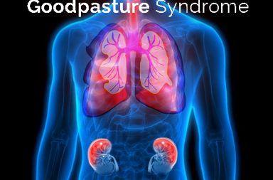 متلازمة غودباستشر: الأسباب والأعراض والتخشيص والعلاج فشل كلوي سريع التدهور إصابة في الرئة والكلى أحد أمراض المناعة الذاتية