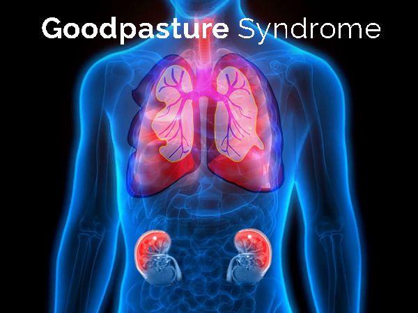 متلازمة غودباستشر: الأسباب والأعراض والتخشيص والعلاج