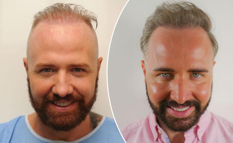 عملية زرع الشعر: ما هو المتوقع؟