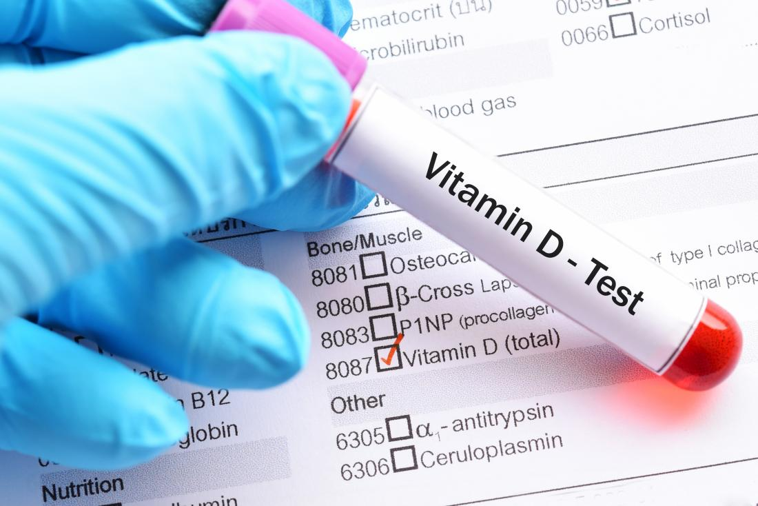 أعراض نقص فيتامين د - كيف تعرف أنك مصاب بنقص فيتامين د - أعراض قلة ونقص فيتامين دال في الجسم - مصادر الحصول على فيتامين دال