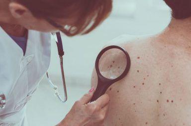 الساركوما: الأسباب والأعراض والتشخيص والعلاج شكل من أشكال السرطان ساركوما الأنسجة الرخوة ساركوما العظام السرطان داخل العظم