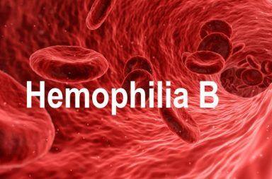 الهيموفيليا B - الناعور B الأسباب والأعراض والتشخيص والعلاج اضطراب وراثي يسبب النزيف عدم قدرة الدم على التجلط تخثر الدم تجلط الدم