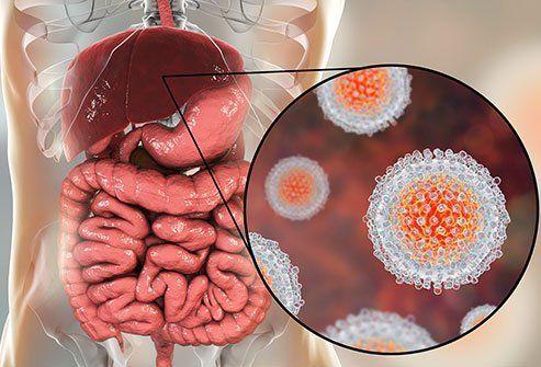 التهاب الكبد D: الأسباب والأعراض والتشخيص والعلاج
