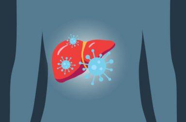 فيروس كورونا يسبب التهاب الكبد! - مستويات عالية من إنزيمات الكبد مع لون غامق للبول - الإصابة بمرض كوفيد19 الناتج عن فيروس كورونا المستجد