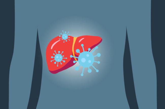 فيروس كورونا يسبب التهاب الكبد!