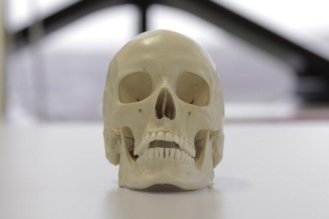 ما سبب نمو البنية العظمية الغريبة من الجمجمة عند اليافعين ؟